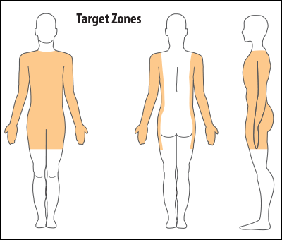 rules-legal-target-zones